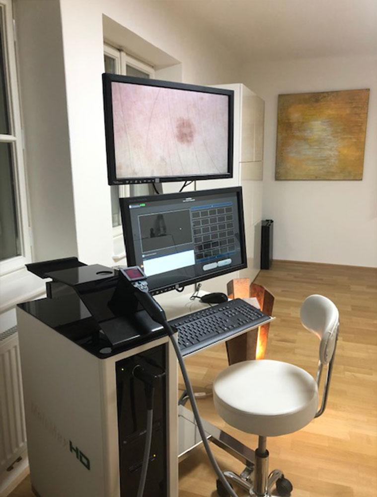 Muttermalkontrolle zur Hautkrebsvorsorge bei Dr. Michael Sigmund Hautarzt in Salzburg